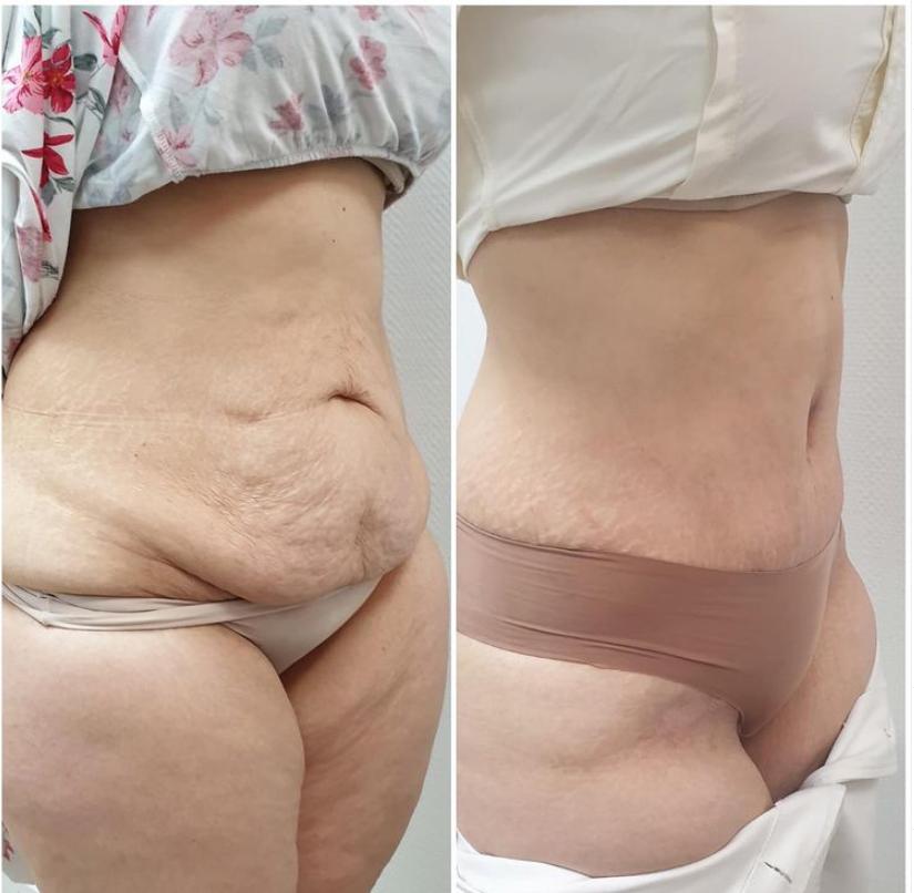 abdominoplastia pre y post 2