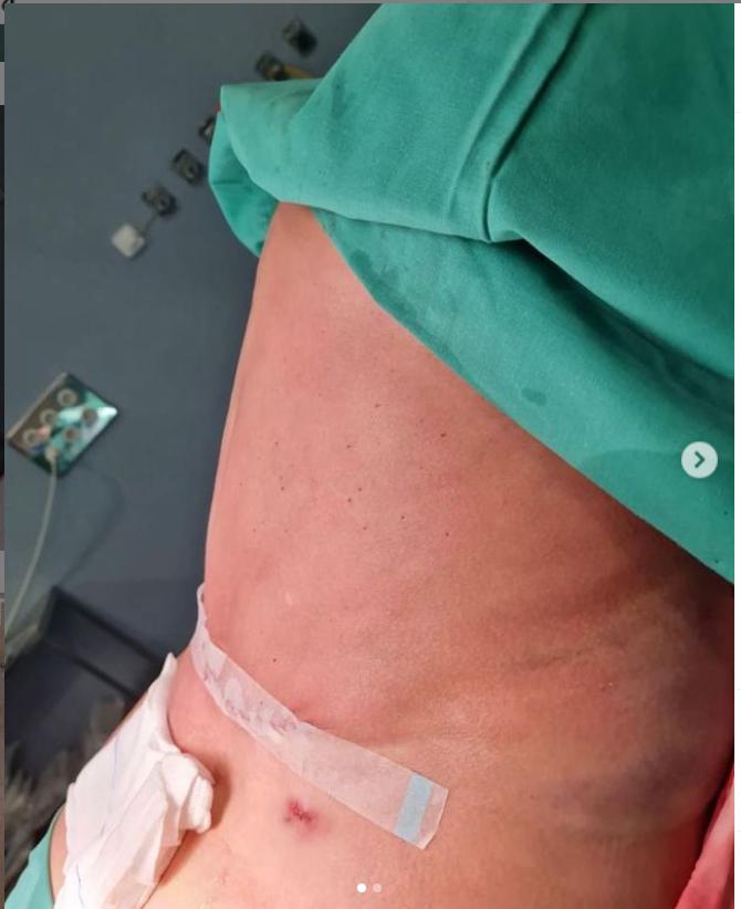 abdominoplastia pre y post