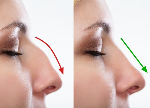 Woman's Nose Before And After Plastic Surgery With Red And Green Arrows
