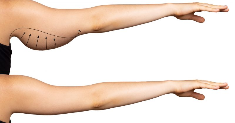 Arrows show the before and after results of a successful brachioplasty, a surgical procedure to remove excess fat in the upper arms. Isolated against a white backdrop.